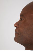 Photos of Jafaris Simon nose 0002.jpg